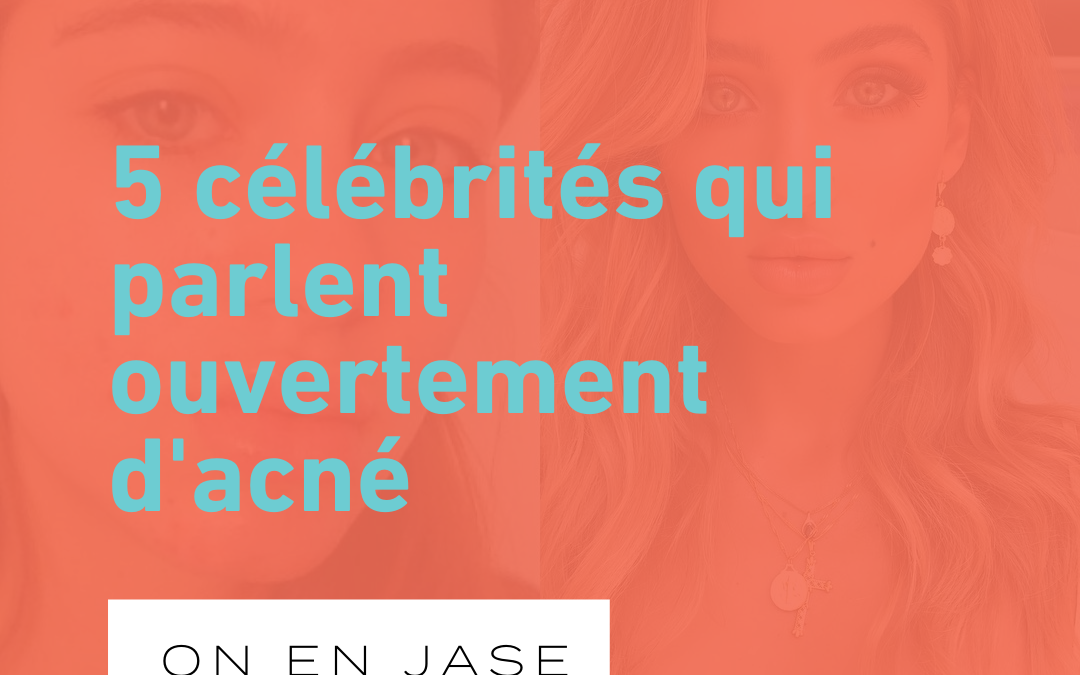 5 célébrités qui ont parlé ouvertement de leurs problèmes d'acné